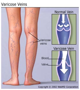varicose veins meaning in hindi